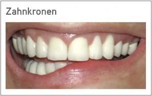 Zahnkronen