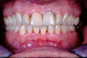 Zahnkronen nachher Helvetic Clinics Budapest