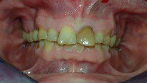Zahnkronen vorher Helvetic Clinics Budapest